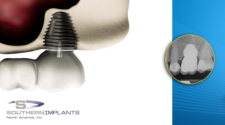 Post Extraction Molar Replacement with Dental Implants