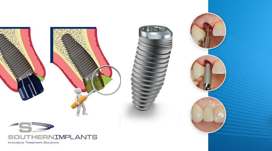 Southern Implants – Predictable Anterior Aesthetics