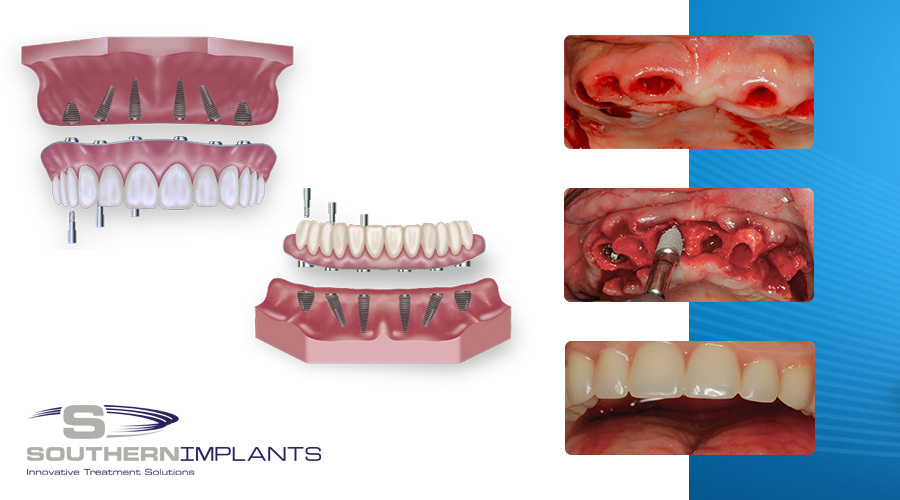 Immediate Full Arch Rehabilitationwith Southern Implants