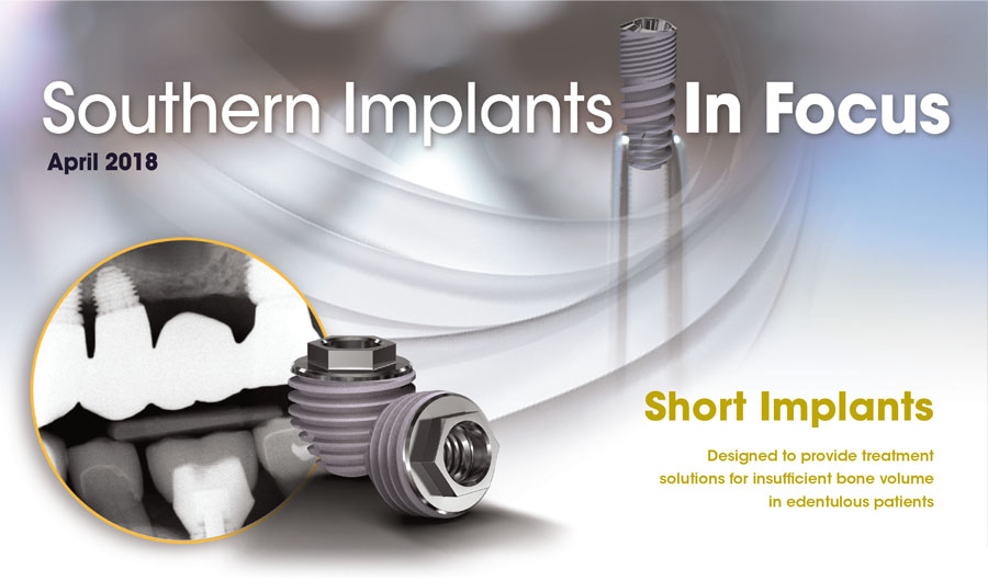 April 2018 – Southern Implants In Focus Newsletter