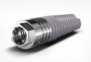 MSc Piccolo Implant