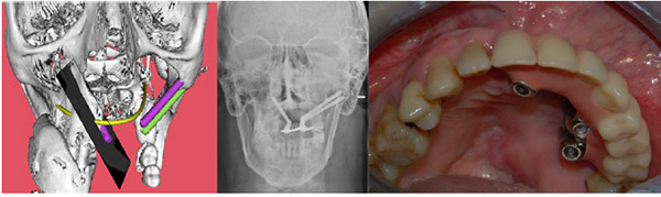 Computer Aided Implant Supported Rehabilitation of Atrophic/oncologic Patients Using Zygomatic Implants