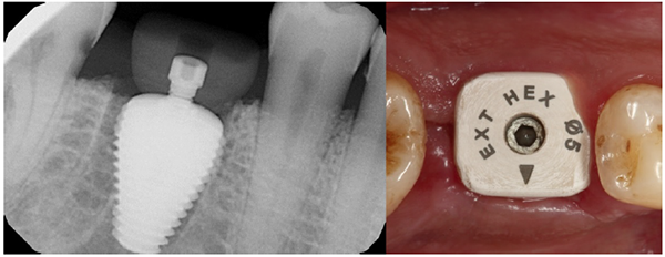Guided Tissue Preservation: Case Report of a New Approach for Immediate Molar Replacement Using an Anatomically Shaped Implant and Healing Abutment