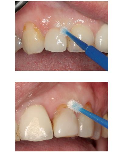 Peri Implantitis