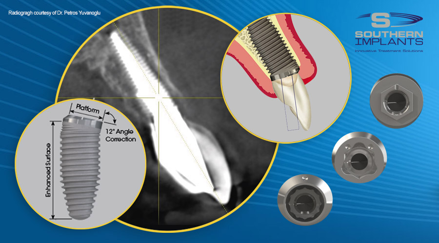 Co-Axis Implants for Subcrestal Angle Correction