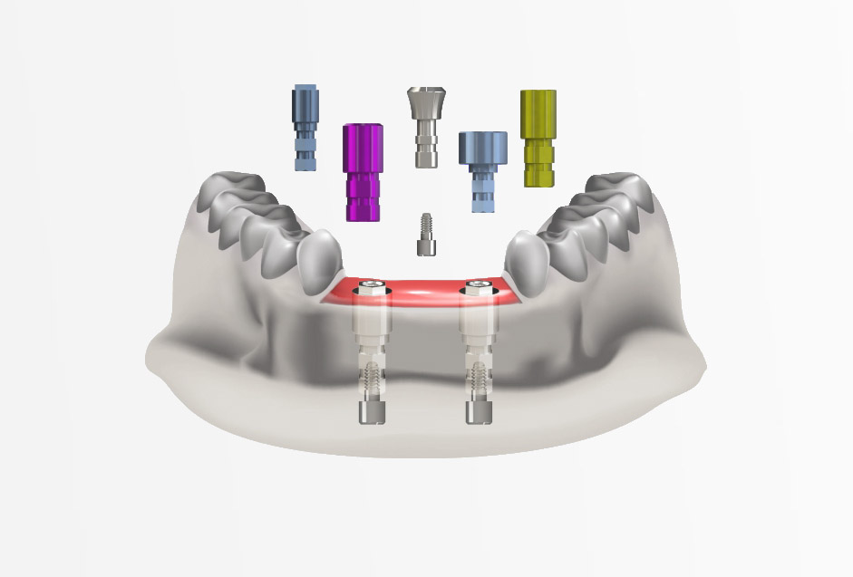 scan abutments