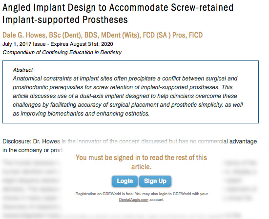 LOGIN: Angled Implant Design to Accommodate Screw-retained Implant-supported Prostheses